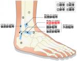 足首捻挫の種類