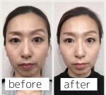保泉の美容ブログ  顔の歪み・しわ part2